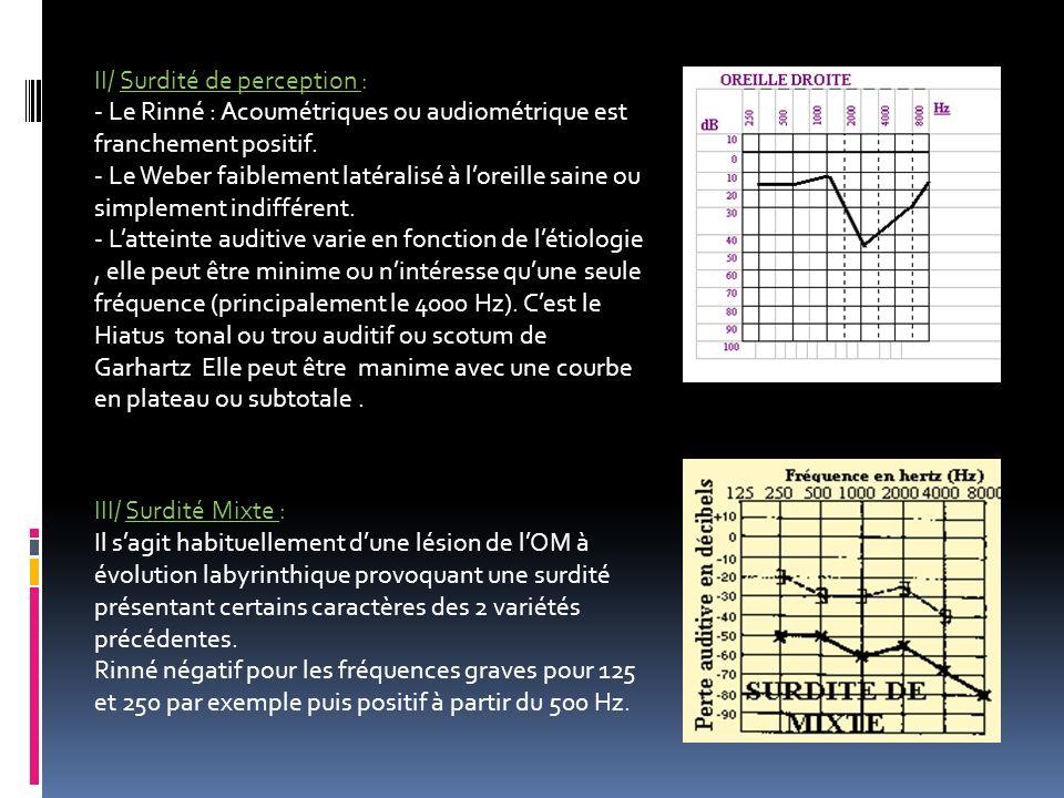 II/ Surdité de perception : - Le Rinné : Acoumétriques ou audiométrique est franchement positif. - Le Weber faiblement latéralisé à loreille saine ou