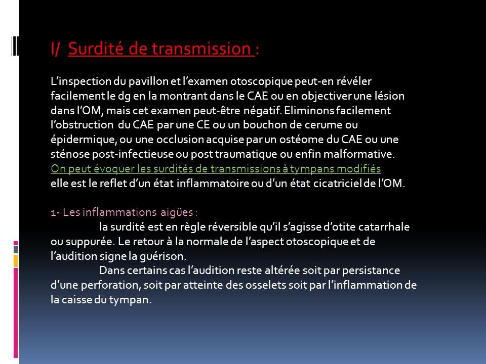 I/ Surdité de transmission : Linspection du pavillon et lexamen otoscopique peut-en révéler facilement le dg en la montrant dans le CAE ou en objectiv