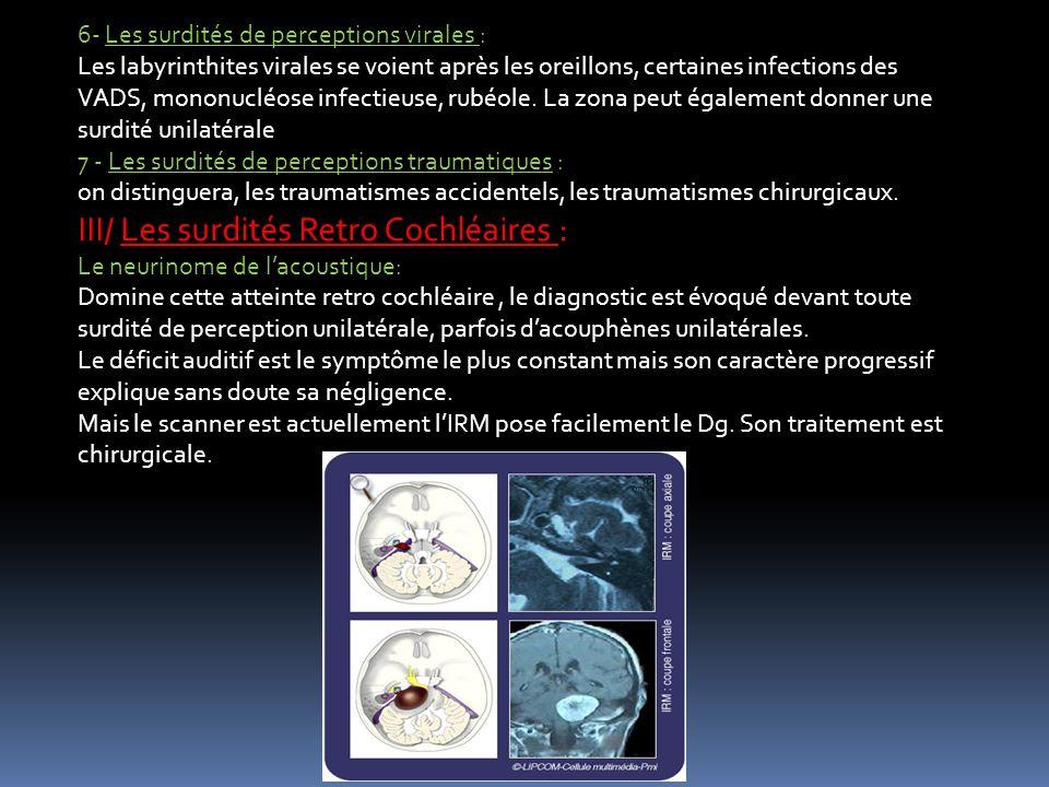 6- Les surdités de perceptions virales : Les labyrinthites virales se voient après les oreillons, certaines infections des VADS, mononucléose infectie