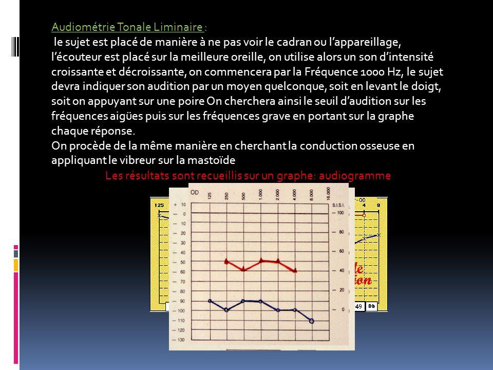 Audiométrie Tonale Liminaire : le sujet est placé de manière à ne pas voir le cadran ou lappareillage, lécouteur est placé sur la meilleure oreille, o