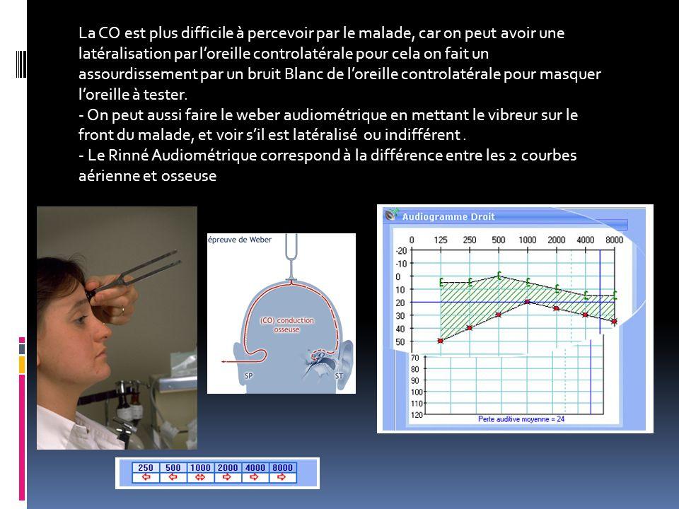 La CO est plus difficile à percevoir par le malade, car on peut avoir une latéralisation par loreille controlatérale pour cela on fait un assourdissem