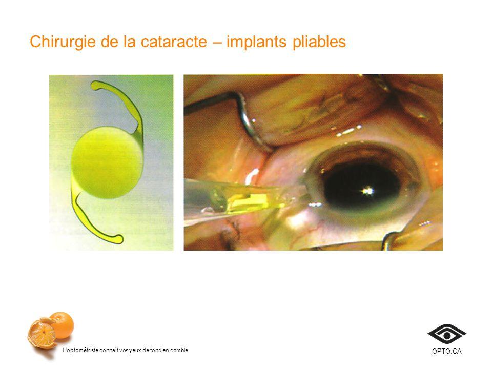 Loptométriste connaît vos yeux de fond en comble OPTO.CA Chirurgie de la cataracte – implants pliables