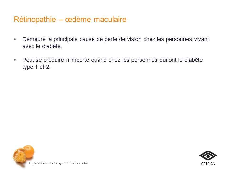 Loptométriste connaît vos yeux de fond en comble OPTO.CA Rétinopathie – œdème maculaire Demeure la principale cause de perte de vision chez les person