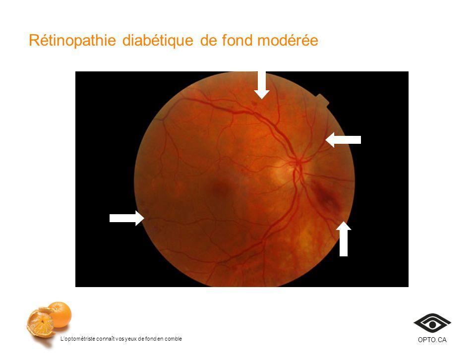 Loptométriste connaît vos yeux de fond en comble OPTO.CA Rétinopathie diabétique de fond modérée