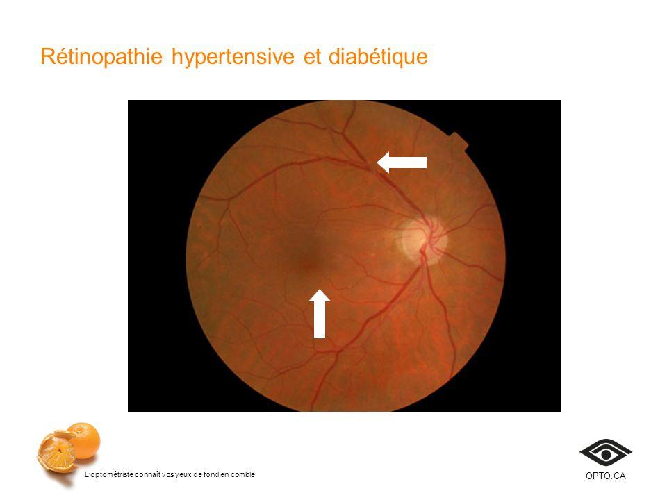 Loptométriste connaît vos yeux de fond en comble OPTO.CA Rétinopathie hypertensive et diabétique