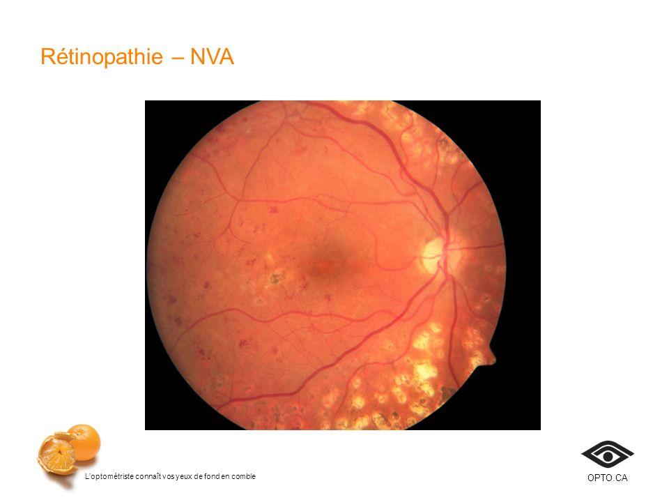 Loptométriste connaît vos yeux de fond en comble OPTO.CA Rétinopathie – NVA