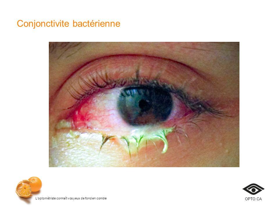 Loptométriste connaît vos yeux de fond en comble OPTO.CA Conjonctivite bactérienne