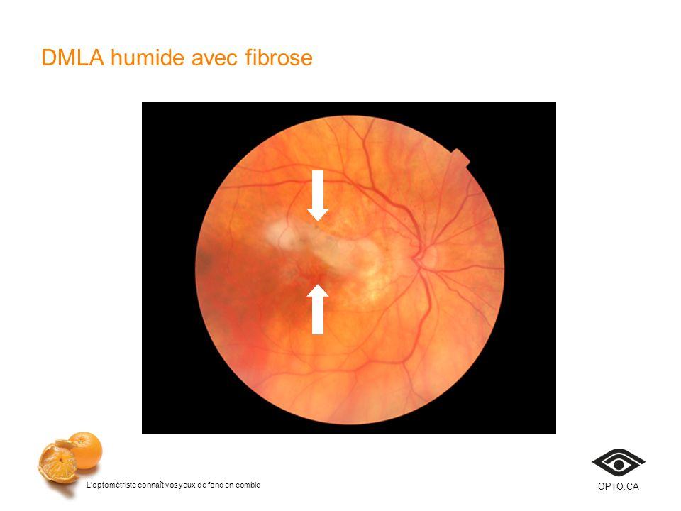 Loptométriste connaît vos yeux de fond en comble OPTO.CA DMLA humide avec fibrose