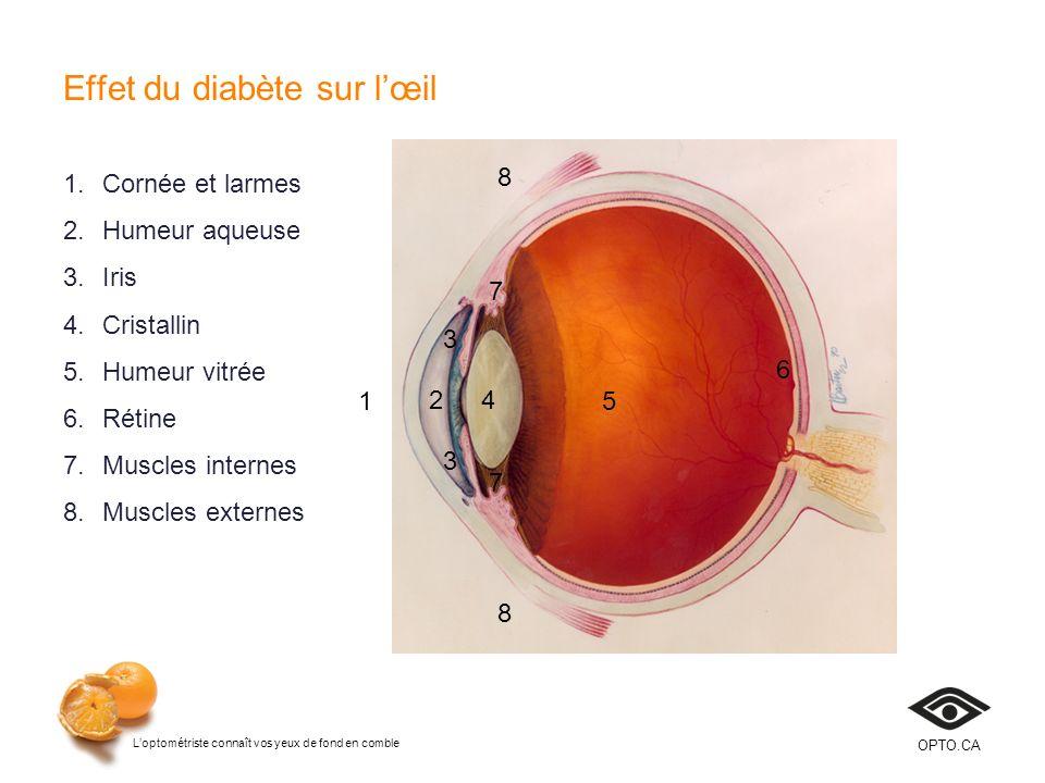 Loptométriste connaît vos yeux de fond en comble OPTO.CA Effet du diabète sur lœil Cornée – hypoesthésie, guérison tardive, changements dépaisseur Humeur aqueuse – concentration de glucose, changements de lindice de réfraction Iris – néovascularisation, glaucome secondaire Cristallin – changements de réfraction, apparition de cataracte Humeur vitrée – dépôts lipidiques, hémorragie Rétine – œdème, ischémie, hémorragie, néovascularisation Muscles intraoculaires – parésie, dysfonction accommodative Muscles extraoculaires – parésie, diplopie dapparition subite