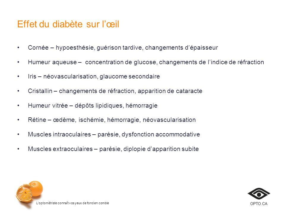 Loptométriste connaît vos yeux de fond en comble OPTO.CA Rétinopathie Personnes qui ont le diabète type 1 100 % vivront avec une rétinopathie diabétique 15 à 20 ans après le diagnostic