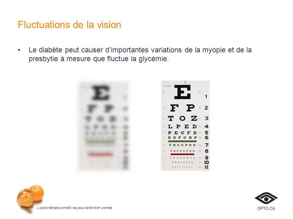 Loptométriste connaît vos yeux de fond en comble OPTO.CA Fluctuations de la vision Le diabète peut causer dimportantes variations de la myopie et de l