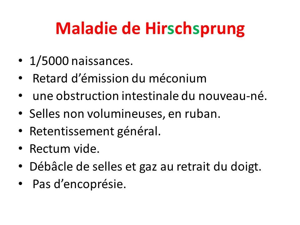 Maladie de Hirschsprung 1/5000 naissances.