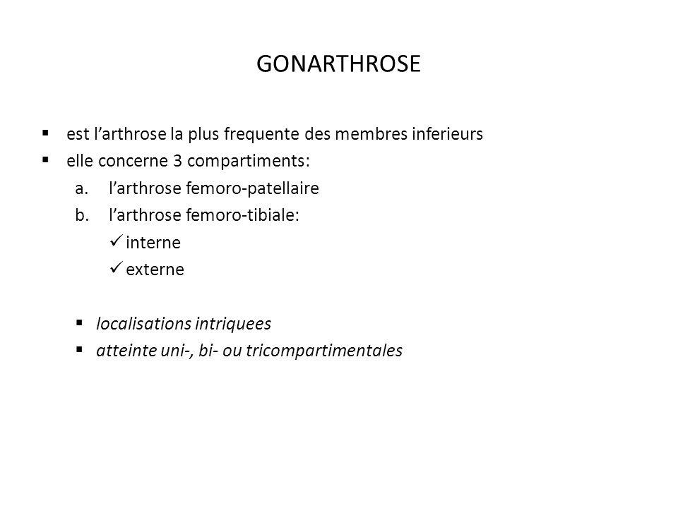 GONARTHROSE est larthrose la plus frequente des membres inferieurs elle concerne 3 compartiments: a.larthrose femoro-patellaire b.larthrose femoro-tibiale: interne externe localisations intriquees atteinte uni-, bi- ou tricompartimentales