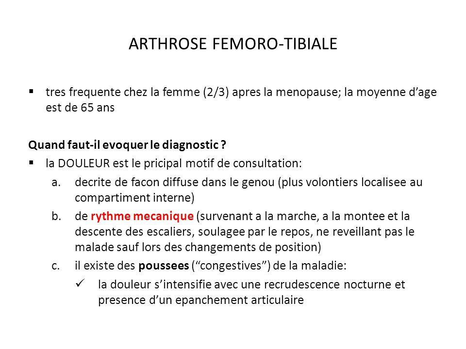 ARTHROSE FEMORO-TIBIALE tres frequente chez la femme (2/3) apres la menopause; la moyenne dage est de 65 ans Quand faut-il evoquer le diagnostic .