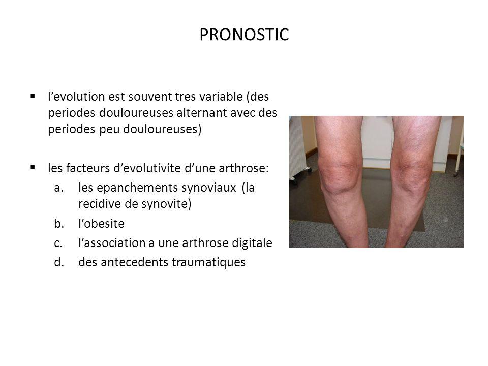 PRONOSTIC levolution est souvent tres variable (des periodes douloureuses alternant avec des periodes peu douloureuses) les facteurs devolutivite dune arthrose: a.les epanchements synoviaux (la recidive de synovite) b.lobesite c.lassociation a une arthrose digitale d.des antecedents traumatiques
