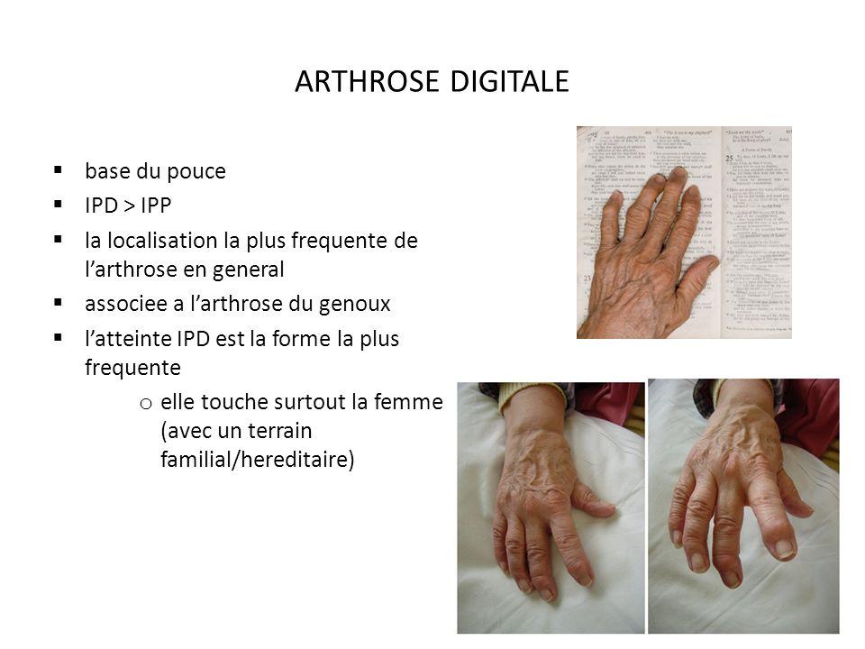 ARTHROSE DIGITALE base du pouce IPD > IPP la localisation la plus frequente de larthrose en general associee a larthrose du genoux latteinte IPD est la forme la plus frequente o elle touche surtout la femme (avec un terrain familial/hereditaire)