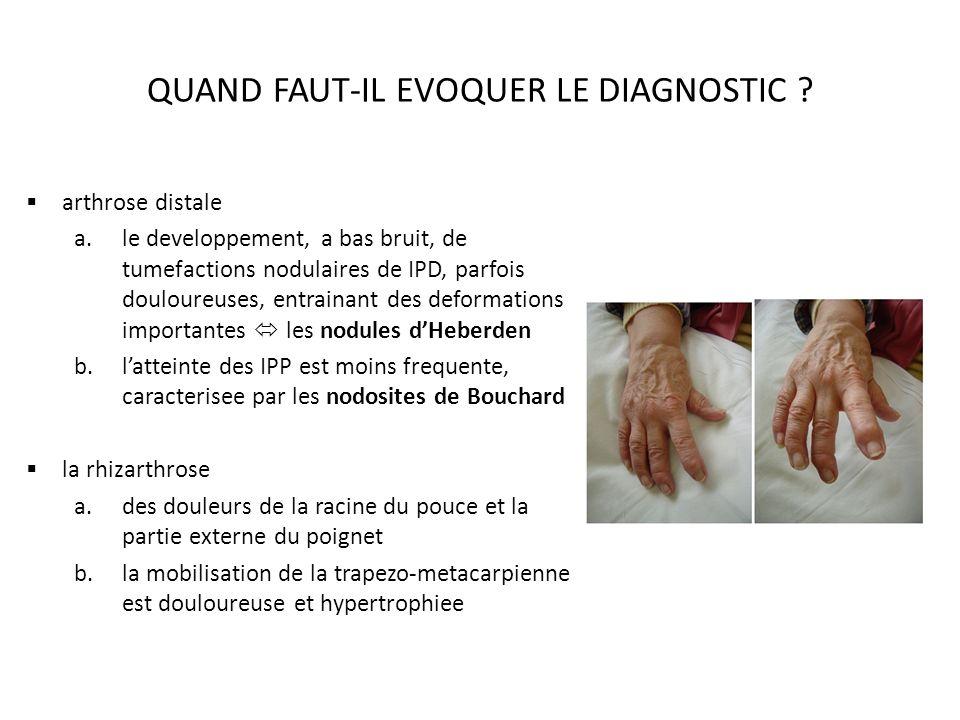 QUAND FAUT-IL EVOQUER LE DIAGNOSTIC ? arthrose distale a.le developpement, a bas bruit, de tumefactions nodulaires de IPD, parfois douloureuses, entra