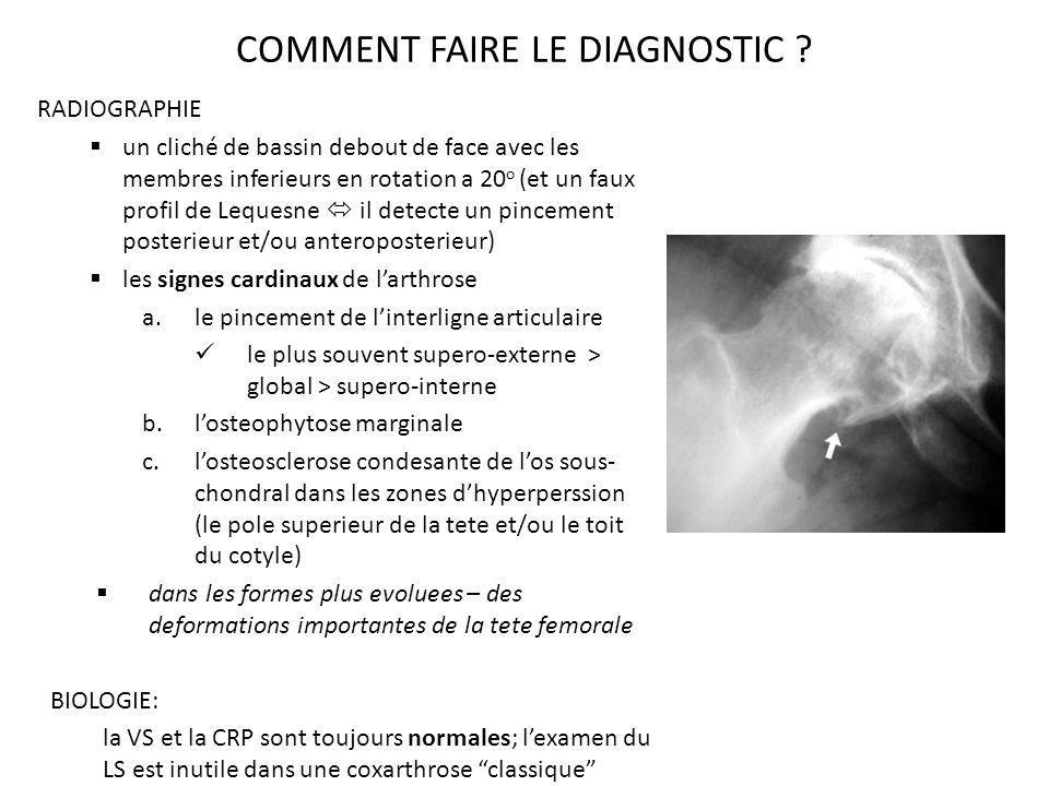 COMMENT FAIRE LE DIAGNOSTIC .