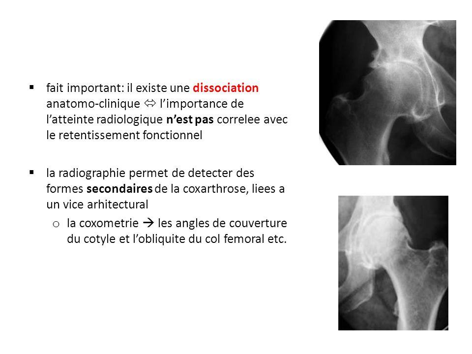 fait important: il existe une dissociation anatomo-clinique limportance de latteinte radiologique nest pas correlee avec le retentissement fonctionnel