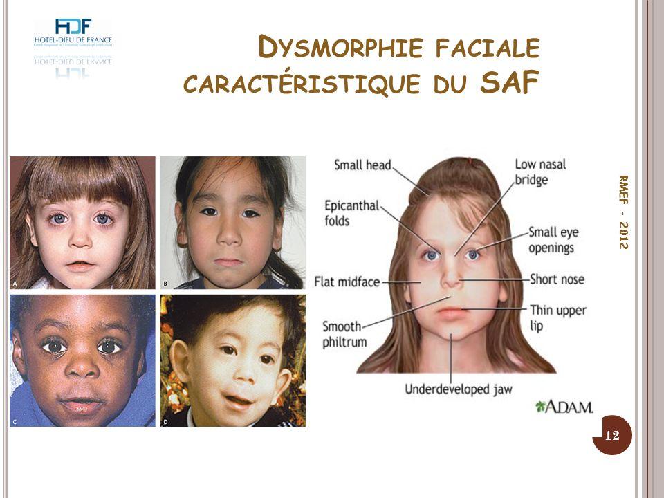D YSMORPHIE FACIALE CARACTÉRISTIQUE DU SAF RMEF - 2012 12