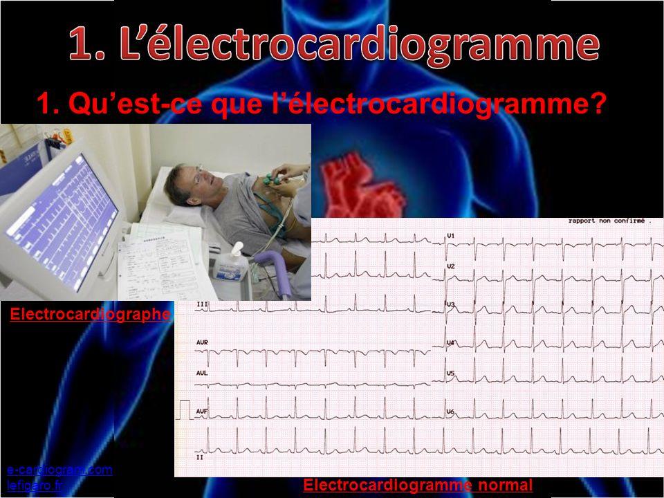 1. Quest-ce que lélectrocardiogramme? e-cardiogram.com lefigaro.fr Electrocardiographe Electrocardiogramme normal