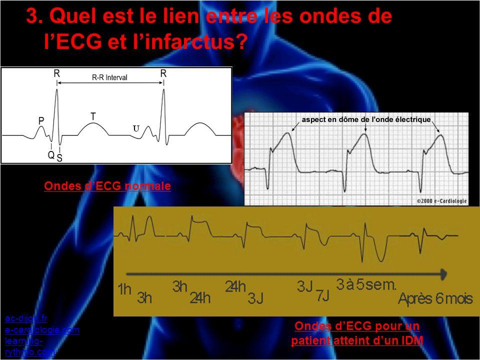 ac-dijon.fr e-cardiologie.com learning- rythmo.com Ondes dECG normale Ondes dECG pour un patient atteint dun IDM 3. Quel est le lien entre les ondes d