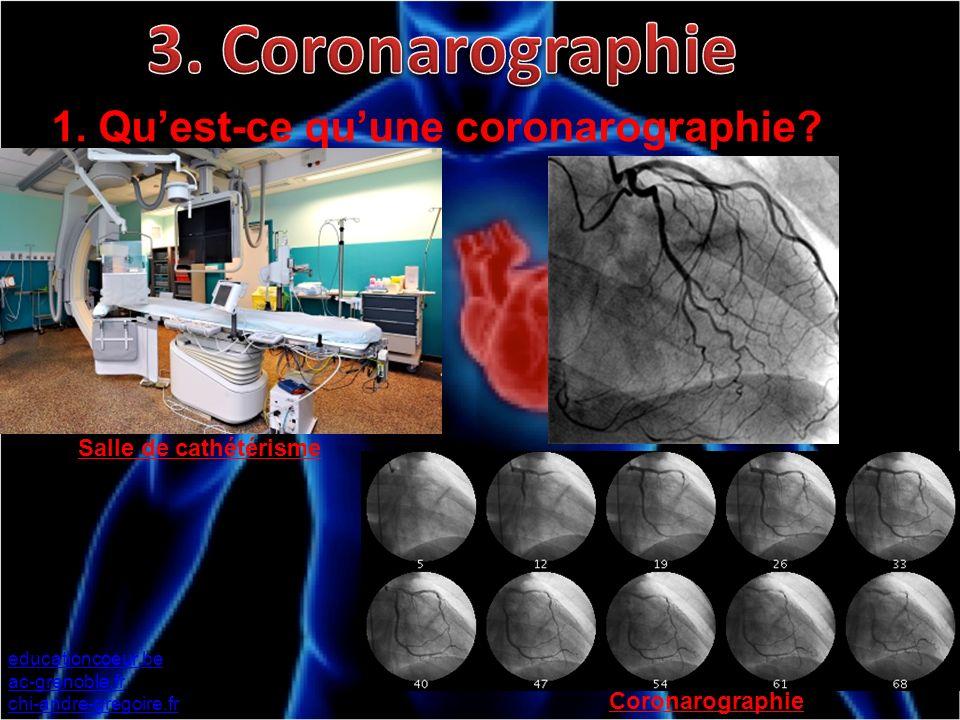 1. Quest-ce quune coronarographie? educationcoeur.be ac-grenoble.fr chi-andre-gregoire.fr Salle de cathétérisme Coronarographie s