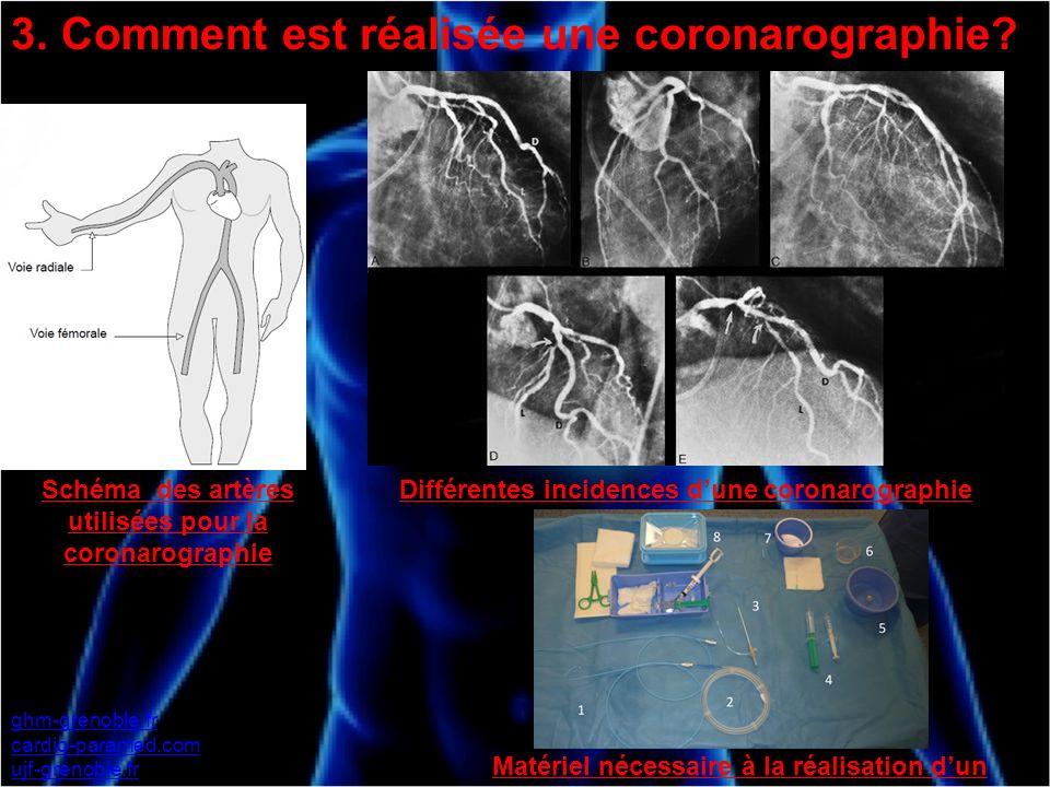 3. Comment est réalisée une coronarographie? ghm-grenoble.fr cardio-paramed.com ujf-grenoble.fr Schéma des artères utilisées pour la coronarographie D