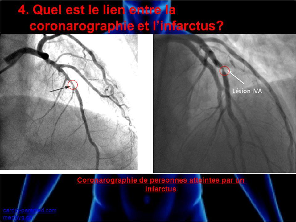4. Quel est le lien entre la coronarographie et linfarctus? cardio-paramed.com medhyg.ch Coronarographie de personnes atteintes par un infarctus