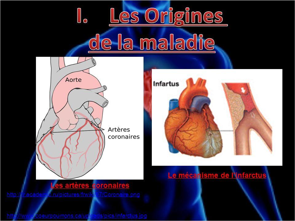 Les artères coronaires Le mécanisme de l'infarctus http://www.coeurpoumons.ca/uploads/pics/infarctus.jpg http://fr.academic.ru/pictures/frwiki/67/Coro