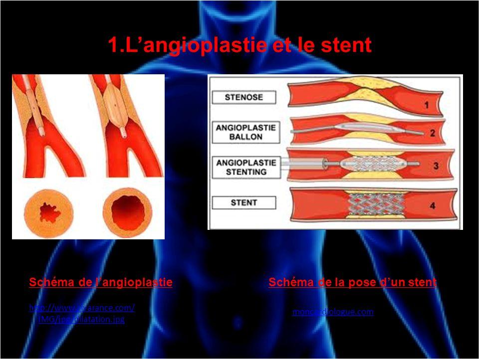 1.Langioplastie et le stent Schéma de langioplastie http://www.rivarance.com/ IMG/jpg/dilatation.jpg Schéma de la pose dun stent moncardiologue.com