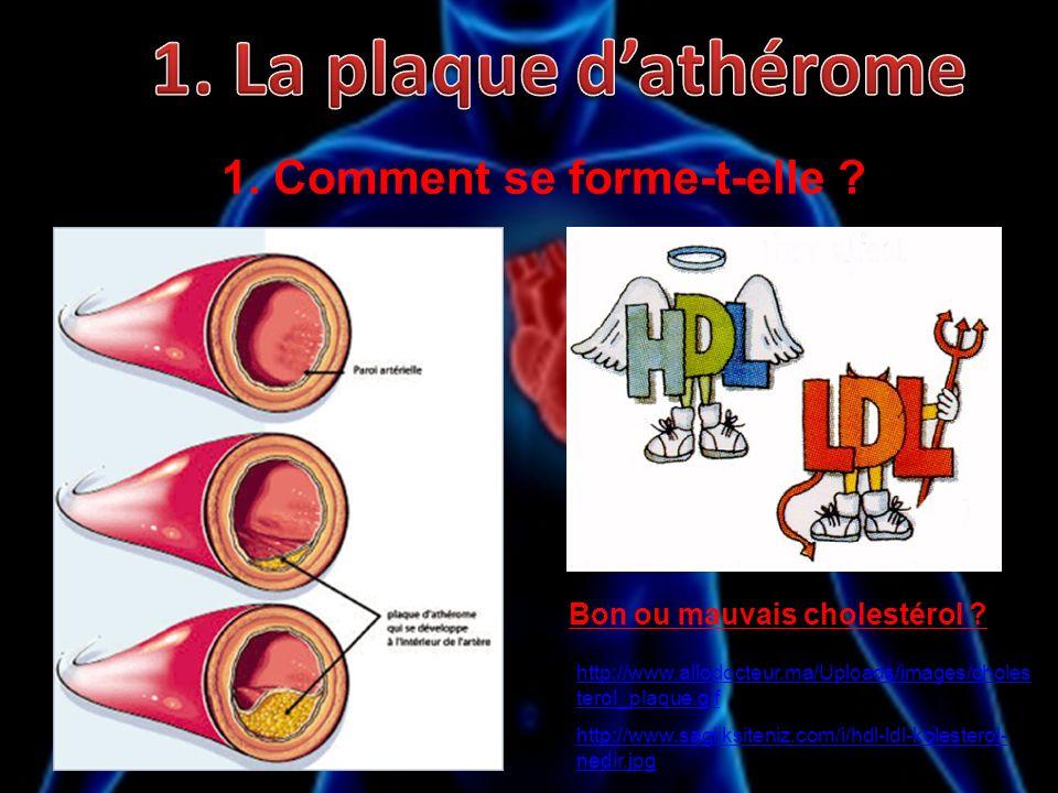 1. Comment se forme-t-elle ? Bon ou mauvais cholestérol ? http://www.allodocteur.ma/Uploads/images/choles terol_plaque.gif http://www.sagliksiteniz.co