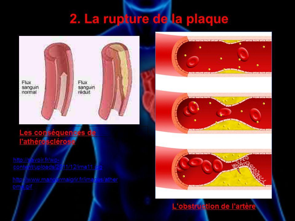 2. La rupture de la plaque Les conséquences de l'athérosclérose L'obstruction de l'artère http://savoir.fr/wp- content/uploads/2011/12/ima11.jpg http: