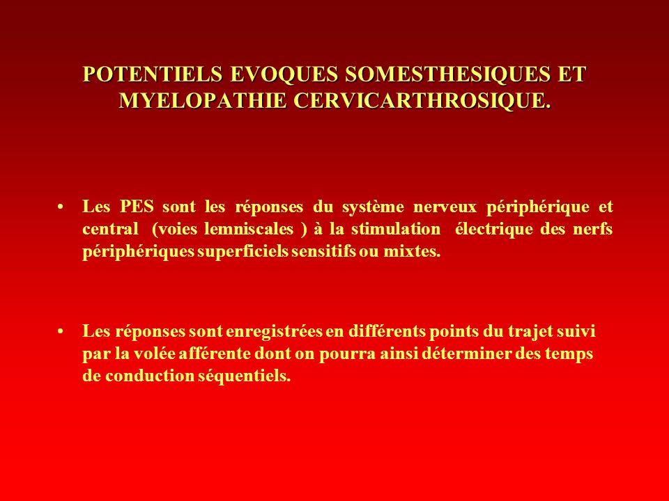 POTENTIELS EVOQUES SOMESTHESIQUES ET MYELOPATHIE CERVICARTHROSIQUE. Les PES sont les réponses du système nerveux périphérique et central (voies lemnis
