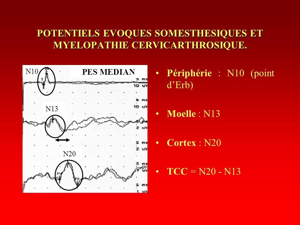 POTENTIELS EVOQUES SOMESTHESIQUES ET MYELOPATHIE CERVICARTHROSIQUE. Périphérie : N10 (point dErb) Moelle : N13 Cortex : N20 TCC = N20 - N13 N10 N13 N2