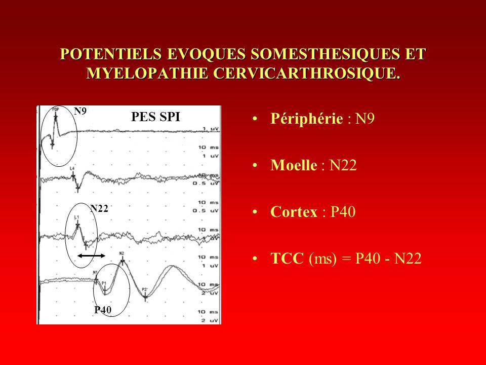 POTENTIELS EVOQUES SOMESTHESIQUES ET MYELOPATHIE CERVICARTHROSIQUE. Périphérie : N9 Moelle : N22 Cortex : P40 TCC (ms) = P40 - N22 N9 N22 P40 PES SPI