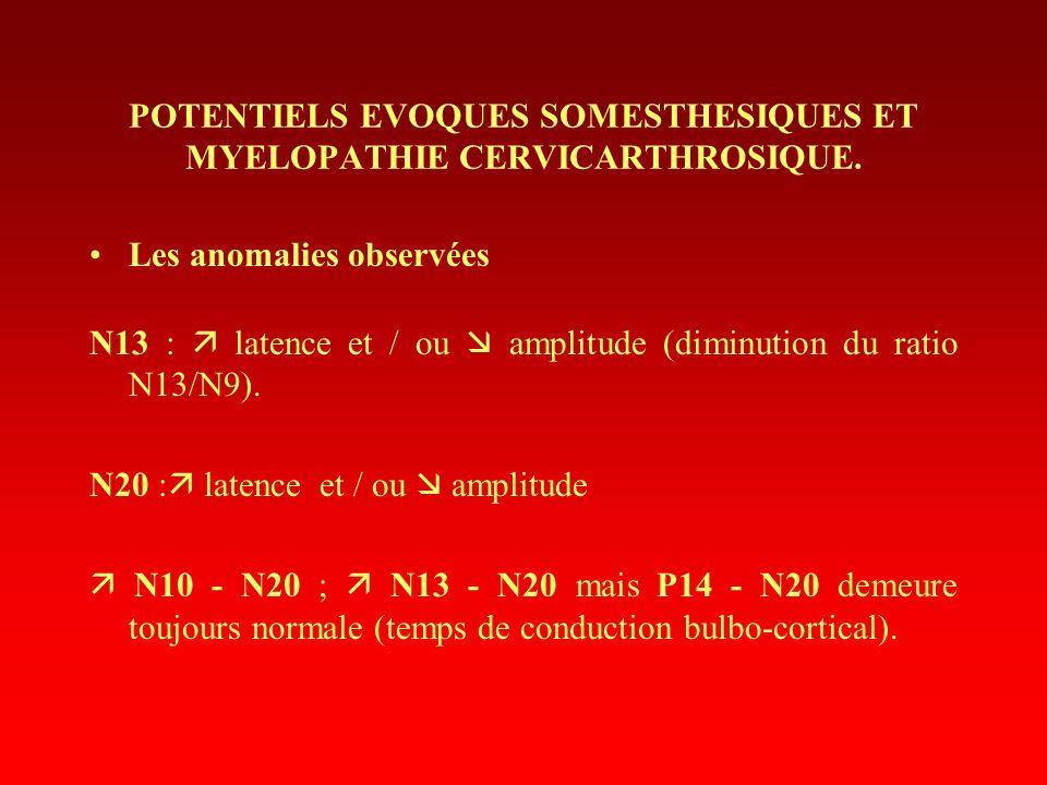 Les anomalies observées N13 : latence et / ou amplitude (diminution du ratio N13/N9). N20 : latence et / ou amplitude N10 - N20 ; N13 - N20 mais P14 -