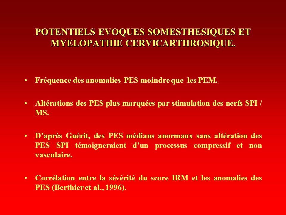 Fréquence des anomalies PES moindre que les PEM. Altérations des PES plus marquées par stimulation des nerfs SPI / MS. Daprès Guérit, des PES médians