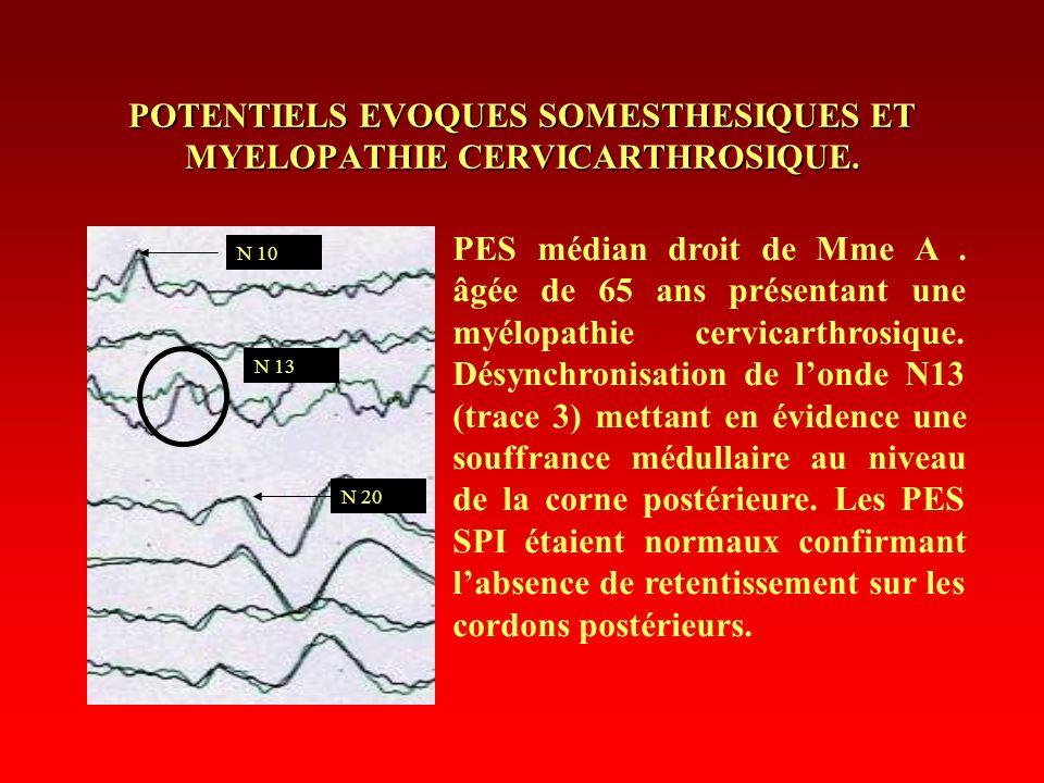 POTENTIELS EVOQUES SOMESTHESIQUES ET MYELOPATHIE CERVICARTHROSIQUE. PES médian droit de Mme A. âgée de 65 ans présentant une myélopathie cervicarthros