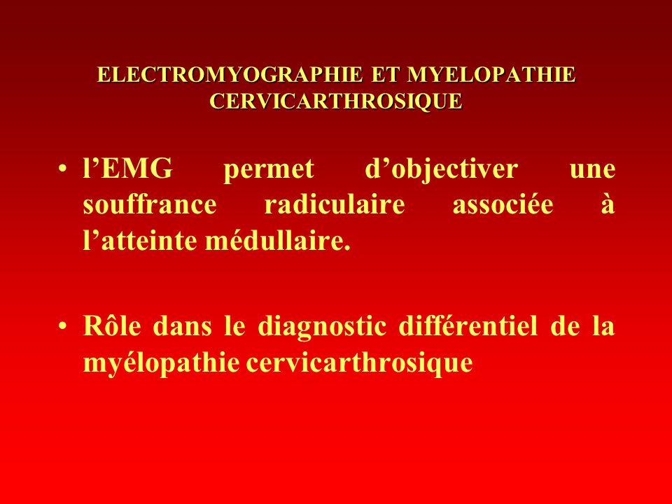ELECTROMYOGRAPHIE ET MYELOPATHIE CERVICARTHROSIQUE lEMG permet dobjectiver une souffrance radiculaire associée à latteinte médullaire. Rôle dans le di