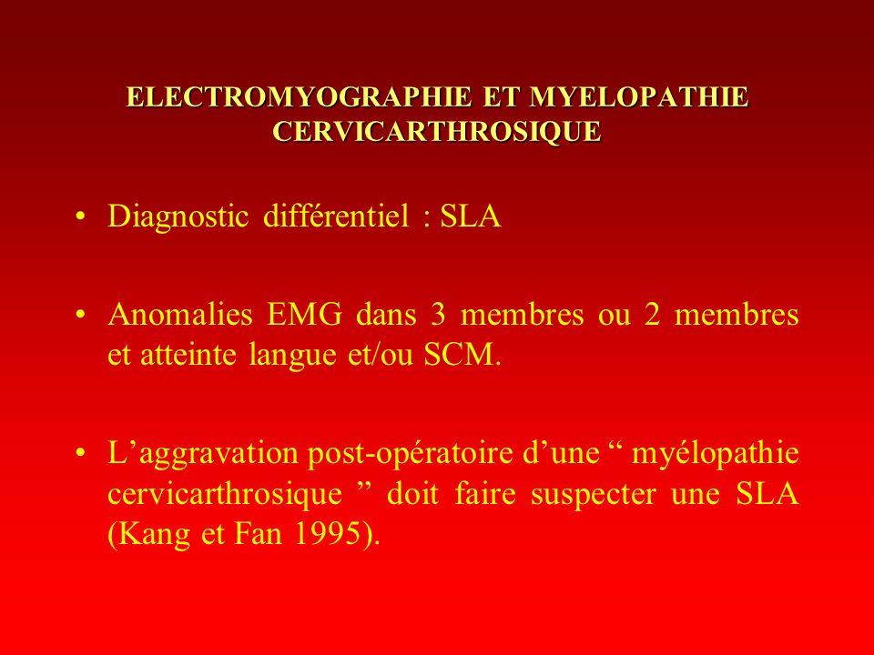 ELECTROMYOGRAPHIE ET MYELOPATHIE CERVICARTHROSIQUE Diagnostic différentiel : SLA Anomalies EMG dans 3 membres ou 2 membres et atteinte langue et/ou SC