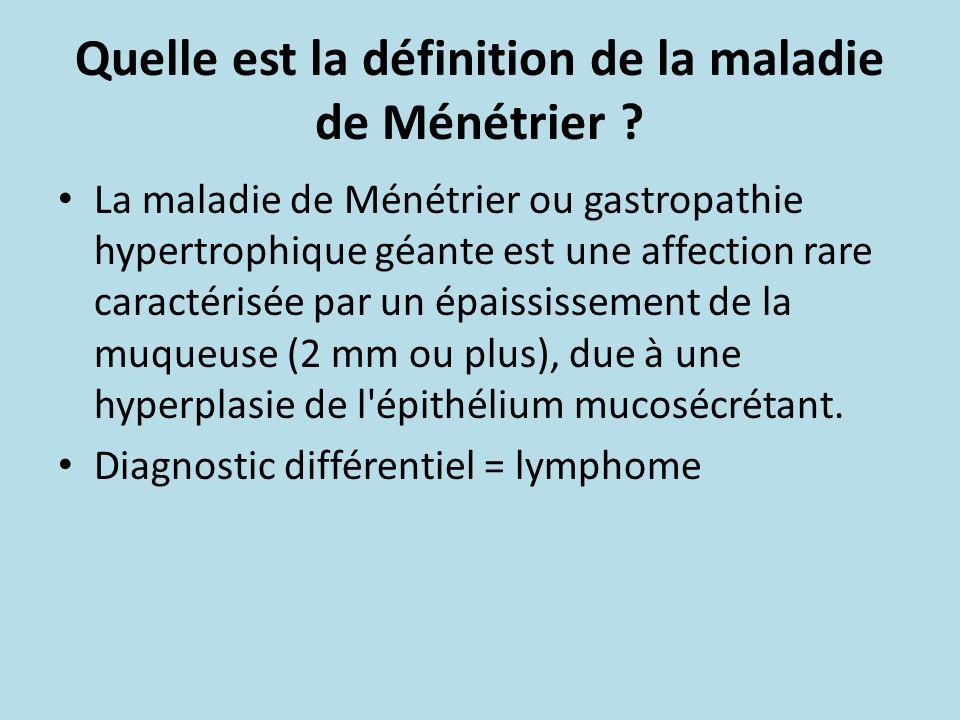 Quelle est la définition de la maladie de Ménétrier ? La maladie de Ménétrier ou gastropathie hypertrophique géante est une affection rare caractérisé