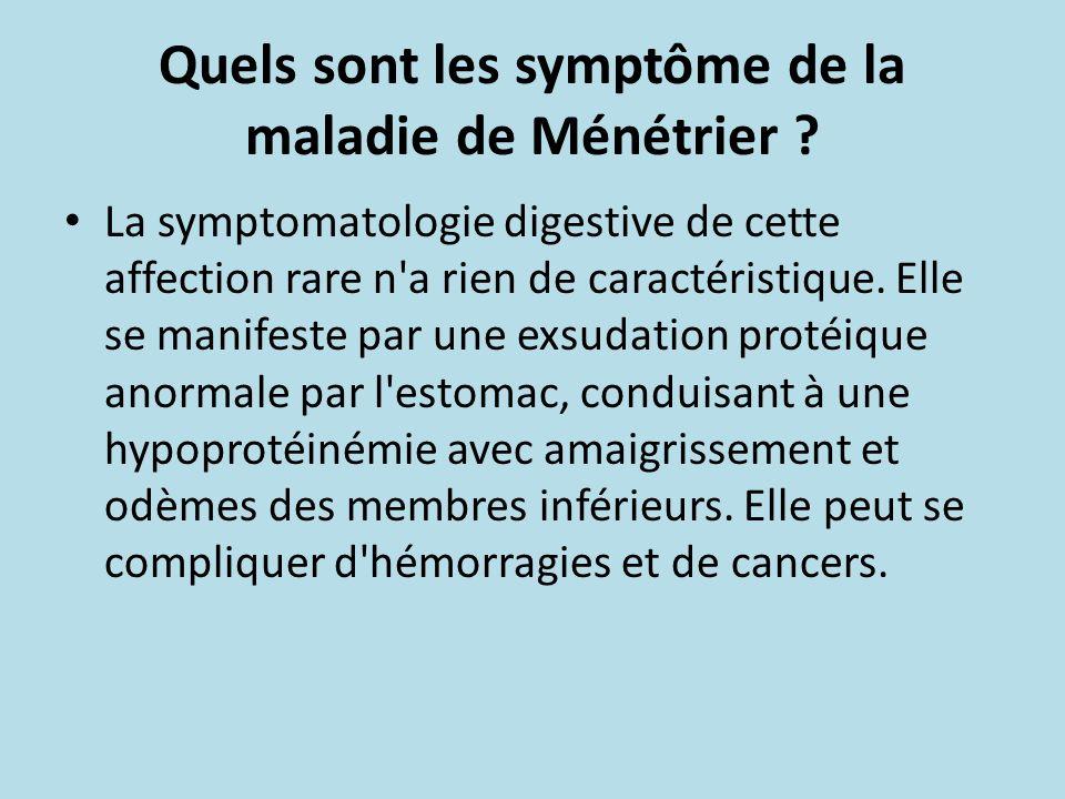 Quels sont les symptôme de la maladie de Ménétrier ? La symptomatologie digestive de cette affection rare n'a rien de caractéristique. Elle se manifes