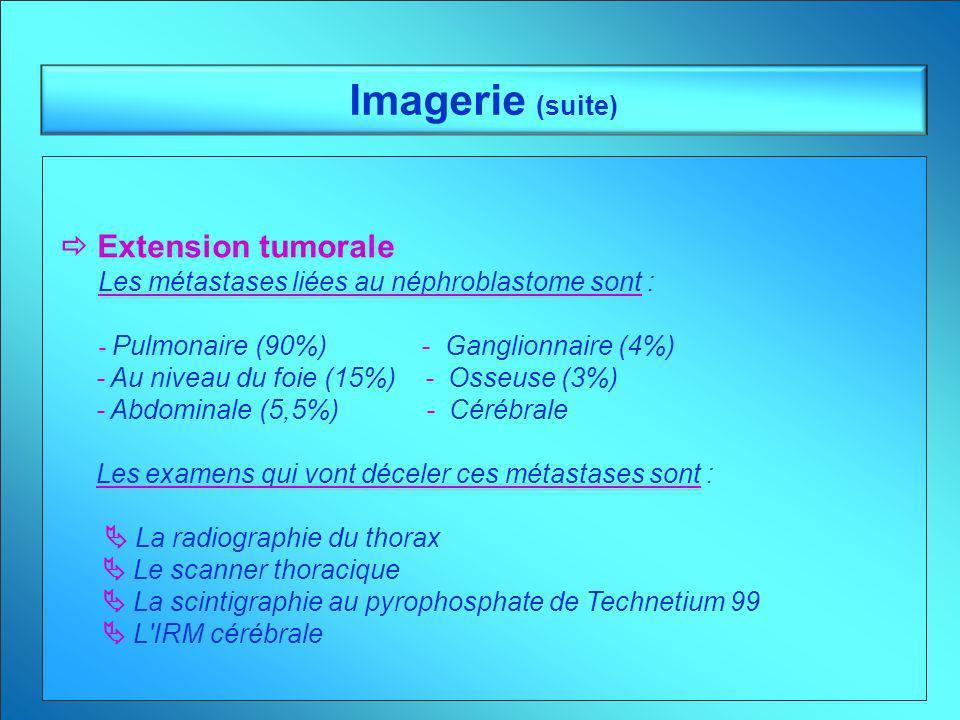 Imagerie (suite) Extension tumorale Les métastases liées au néphroblastome sont : - Pulmonaire (90%) - Ganglionnaire (4%) - Au niveau du foie (15%) -