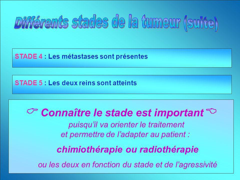 STADE 4 : Les métastases sont présentes STADE 5 : Les deux reins sont atteints Connaître le stade est important puisquil va orienter le traitement et