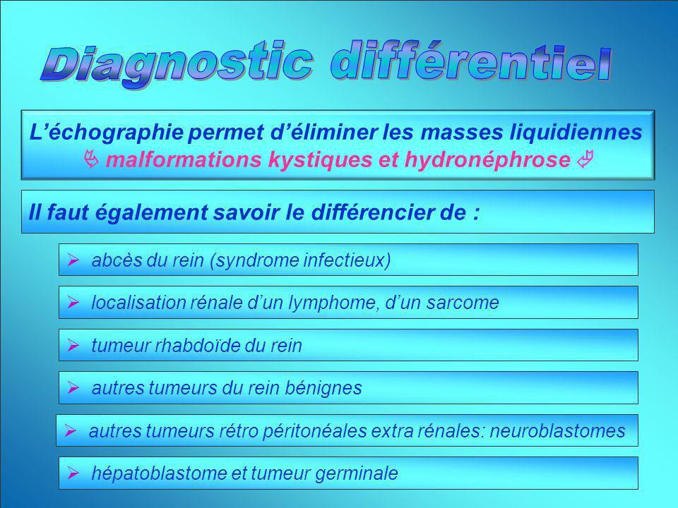 Léchographie permet déliminer les masses liquidiennes malformations kystiques et hydronéphrose Il faut également savoir le différencier de : abcès du
