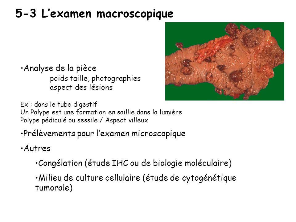 5-2 Les biopsies Une biopsie doit être associée à des renseignements cliniques, représentatives de la tumeur,et acheminée dans des conditions correcte