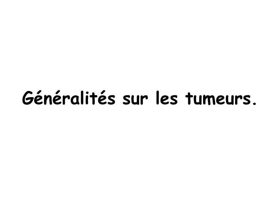 Généralités sur les tumeurs. Histoire naturelle du cancer. Cours 5 : items 138, 139, 140, 141