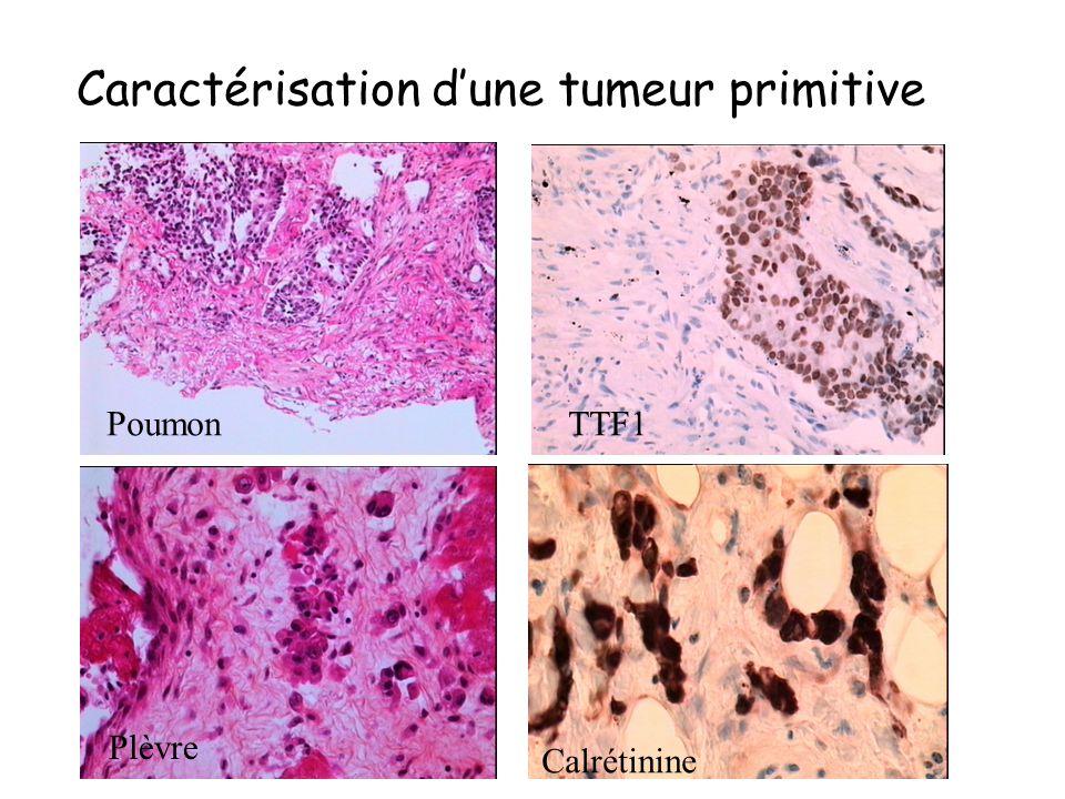 Utilise des AC marqués dirigés contre un antigène de la cellule tumorale Caractérisation des cancers indifférenciés ou très peu différenciés (cytokéra