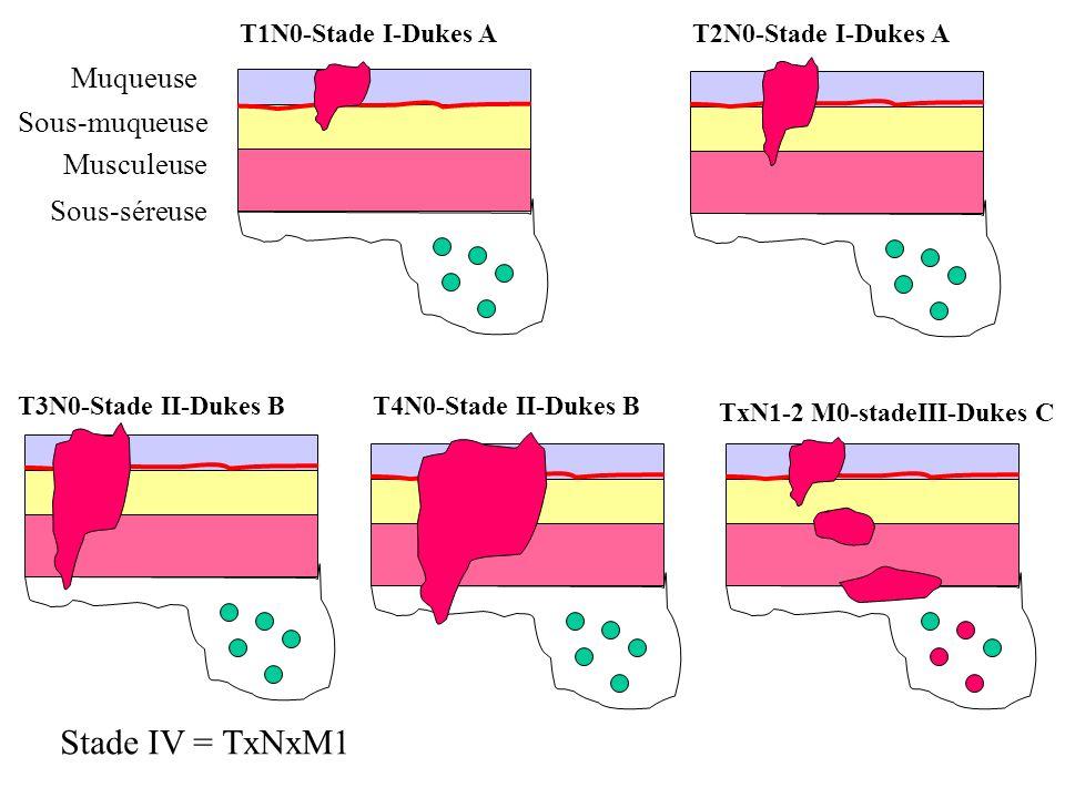 6- Histopronostic des tumeurs malignes Grade histopronostique –Degré danomalies nucléaires et cytoplasmique,de la différenciation, du nombre de mitose